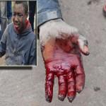 Un jeune Malien agresse à coup d'épée par des toxicomanes à Beni Ansar