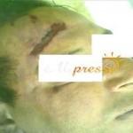Karim Lachkar meurt sous la torture au commissariat de police d'Al Hoceima