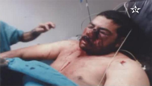 La victime des tirs de l'armée algérienne lutte contre la mort (Vidéo)