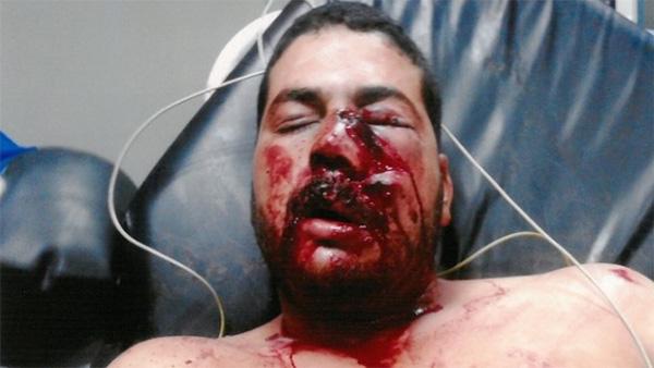 Civil blessé à la frontière algérienne : Les parlementaires souhaitent plus de fermeté