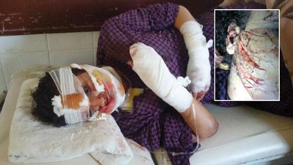 La mineure défigurée par son mari «violeur» menace de se suicider s'il n'est pas relâché