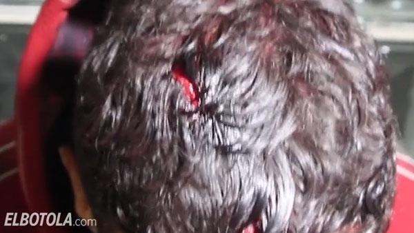 Hooliganisme: 17 supporters du WAC interpellés ( Vidéo )